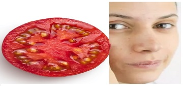 Is tomato good for face